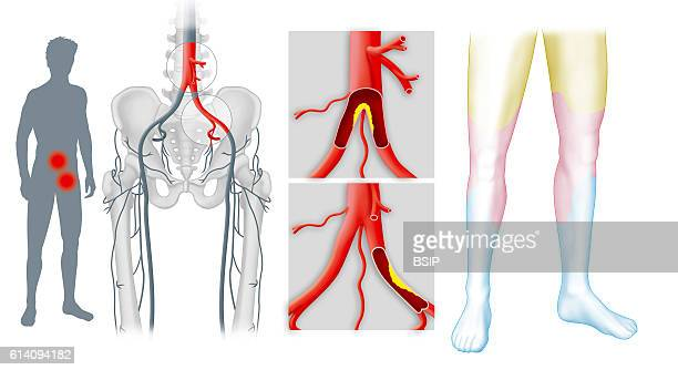 Femoral Artery Stock Photos And Pictures Getty Images