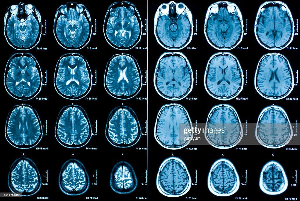Mri Scan Des Gehirns Stock-Foto | Getty Images
