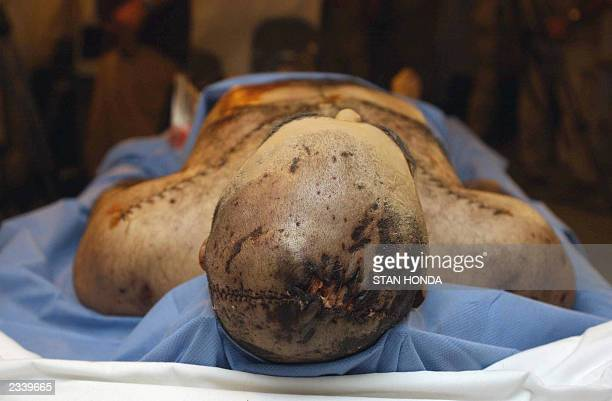 A severe injury said by the US military not to be a gunshot wound is seen on the top of the head of a corpse the military said is that of Uday son of...
