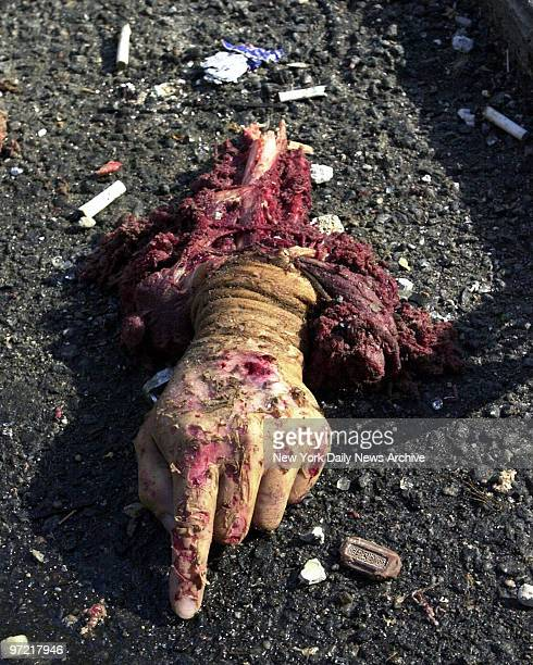 Severed hand lies amid the rubble of the World Trade Center after it was struck by a commercial airliner in a terrorist attack. A hijacked American...