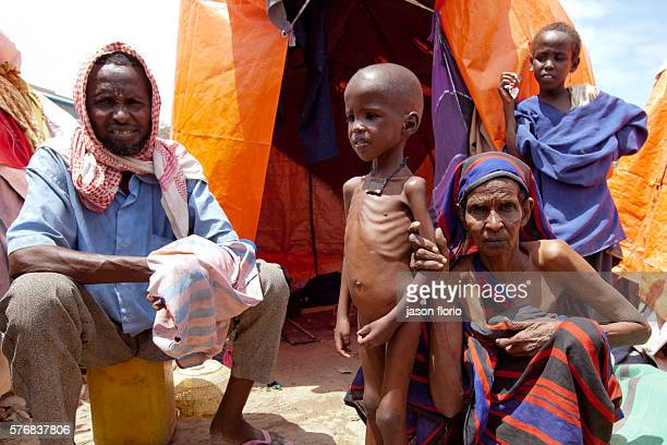 A severely malnourished 5 year old boy who has recently arrived to the Internally Displaced Persons camp near Mogadishu airport is shown to the...