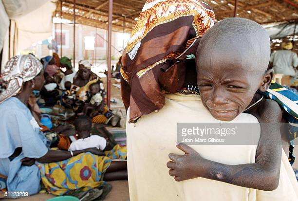 A severely malnourished child is held at the Medecinssansfrontieres clinic December 4 2003 in Maradi Niger Chronic malnutrition is a serious problem...