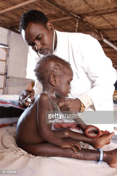 A severely malnourished child is tended to by Doctor Laouli Maman in the Medecinssansfrontieres clinic December 4 2003 in Maradi Niger The child...