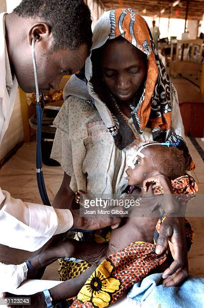 A severely malnourished child is tended to by nurses in the Medecinssansfrontieres clinic December 4 2003 in Maradi Niger Chronic malnutrition is a...