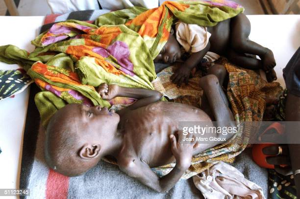 A severely malnourished child lays on a bed of the intensive care unit of the Medecinssansfrontieres clinic December 4 2003 in Maradi Niger Chronic...