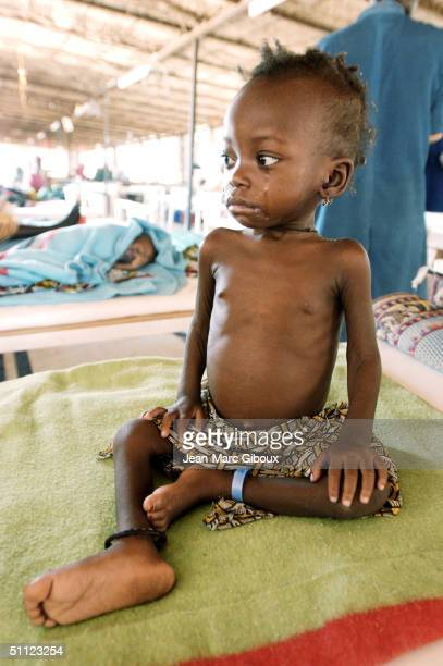A severely malnourished child sits on a bed of the intensive care unit of the Medecinssansfrontieres clinic December 4 2003 in Maradi Niger Chronic...