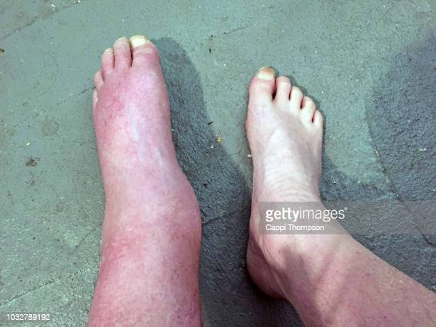 severely swollen foot- edema - swollen ankles stock pictures, royalty-free photos & images