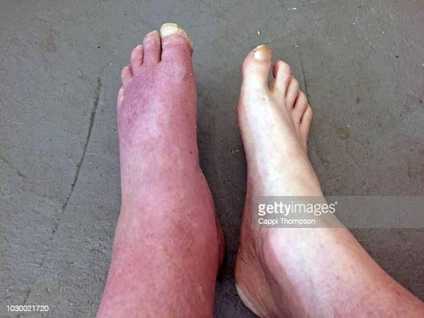 a severely swollen foot in a man from a head on car accident - swollen ankles stock pictures, royalty-free photos & images