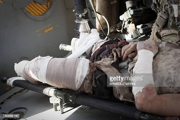 A severely wounded US Marine hit by an Improvised Explosive Device receives medical treatment after airlifted by a medevac helicopter of US Army's...