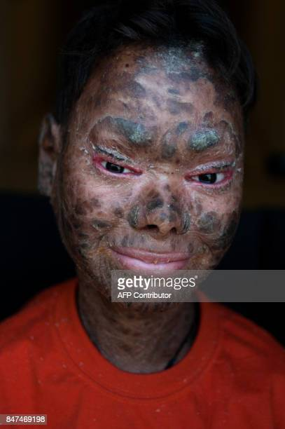 Shalini Yadav known as the snake girl poses in Marbella on September 15 2017 Shalini who suffers recessive lamellar ichthyosis and sheds her skin...