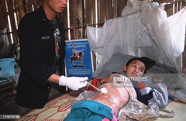 Shan State Army medic cleans the stomach of a 12year old boy suffering from a malformation of his intestine at the SSA hospital at their Loi Tai Leng...