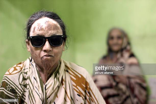 Shanaz Begum victim of an acid attack sits in the flat of her sister in a slum in Kolkata India 08 October 2013 She is blind since the attack 14...