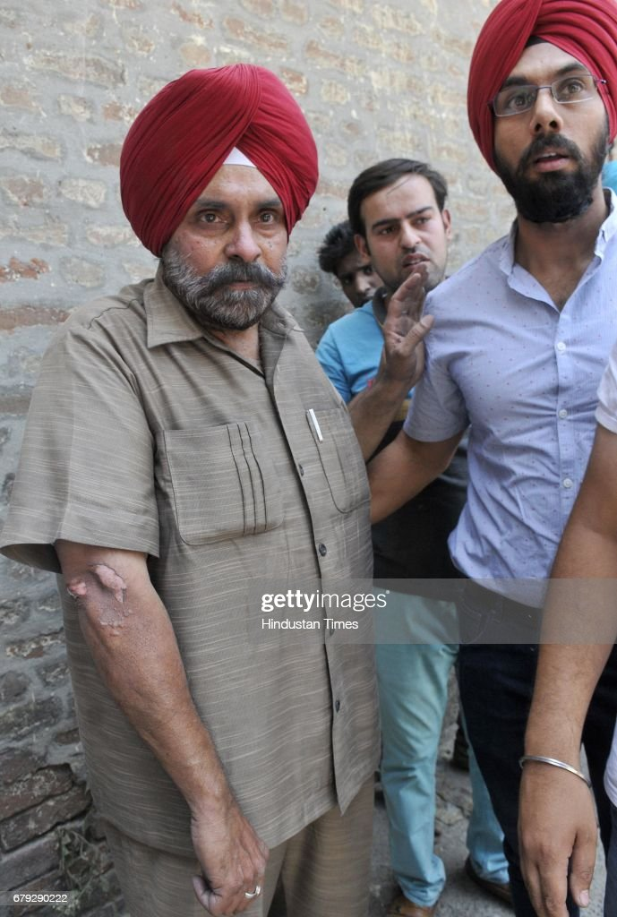 Sharanjit Singh showing his injured arm after a major fire broke out at Ashok Plastics at Cheema Chowk on May 5 2017 in Ludhiana India Eight to 10...