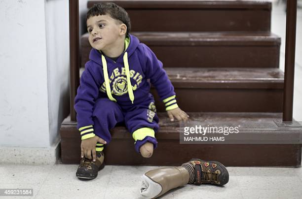 Shareef alNamla wounded during the 50 days of conflict between Israel and Hamas last summer sits next to his prosthetic leg at Gaza's Artificial...