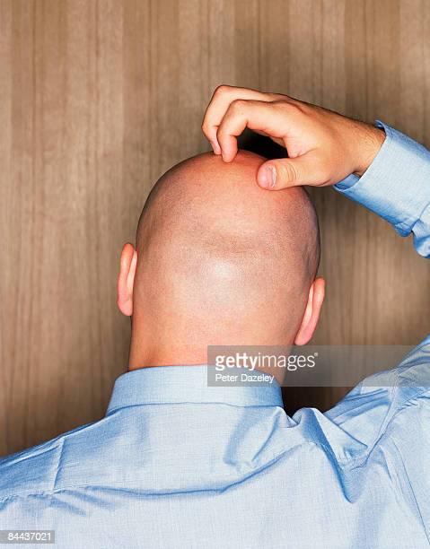 Shaven headed man scratching head