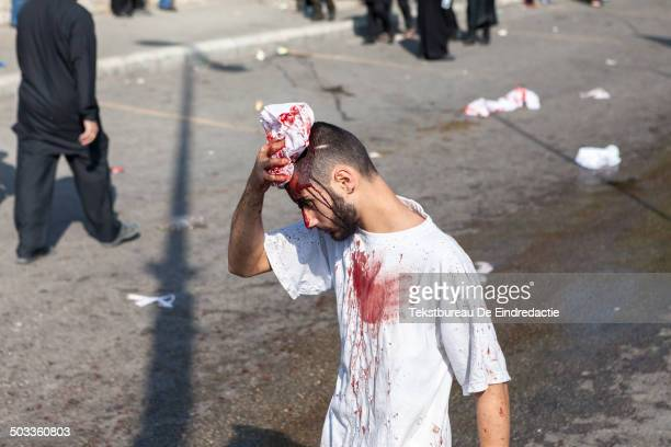 CONTENT] A shiite muslim man with a selfinflicted headwound covered in his own blood walking on the streets of Nabatieh Lebanon during the Day of...