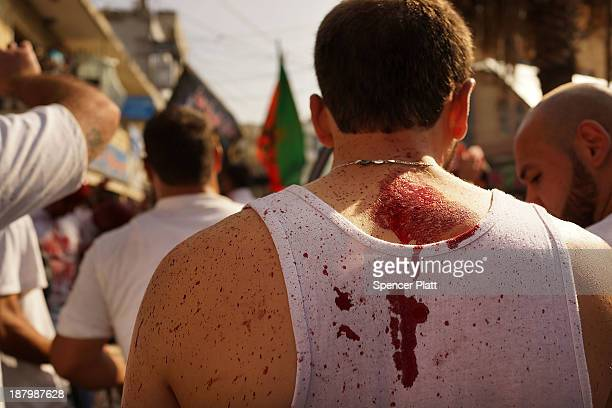 A Shiite Muslim wears a bloody shirt after gashing his foreheads with a sword during a ceremony marking Ashura in Nabatiyeh southern Lebanon on...