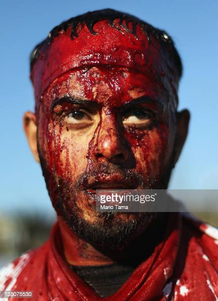 A Shi'ite worshiper bleeds after cutting his scalp in a ritual display of mourning during an Ashura commemoration ceremony outside Kadhimiya shrine...