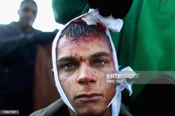 Shi'ite worshiper is treated by a Red Crescent worker after cutting his scalp in a ritual display of mourning during an Ashura commemoration ceremony...