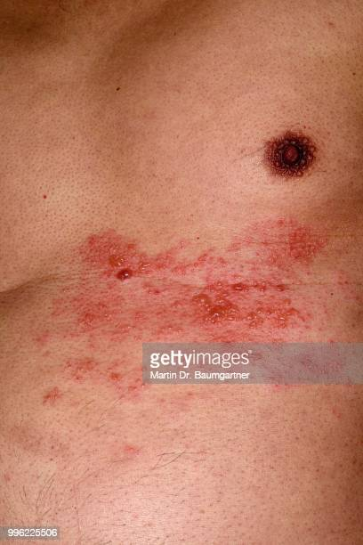 shingles or herpes zoster in the chest area of a man, 56 years, several dermatomes or skin areas affected - herpes zoster fotografías e imágenes de stock