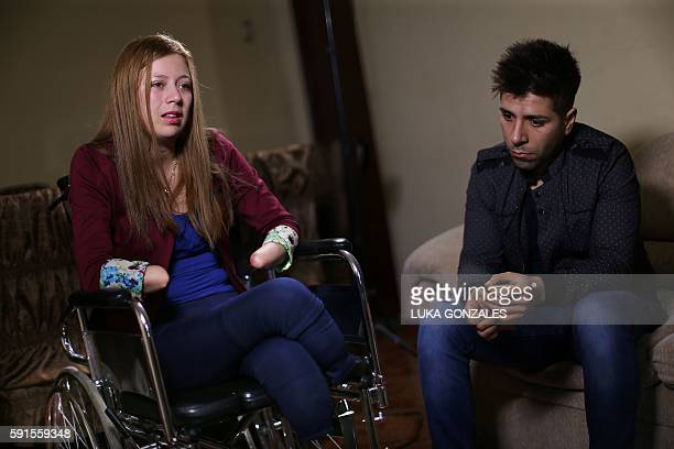 Shirley Melendez whose hands and feet were amputated and her boyfriend Alexander Regalado talk to the press at Melendez's home in the Olivos...
