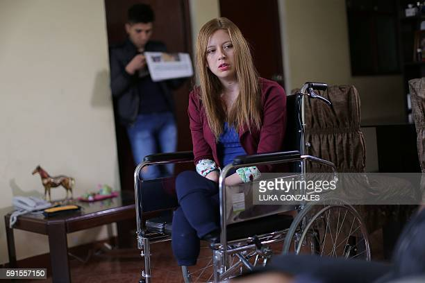 Shirley Melendez whose hands and feet were amputated receives journalists at her home in the Olivos neighborhood in Lima Peru on August 17 2016...