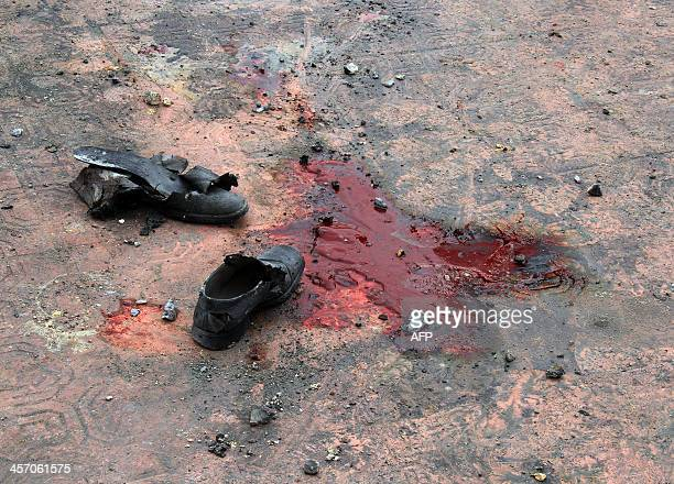Shoes and a pool of blood are seen in the playground of a school after a 'barrel bomb' explosiveladen barrel allegedly dropped by progovernment...
