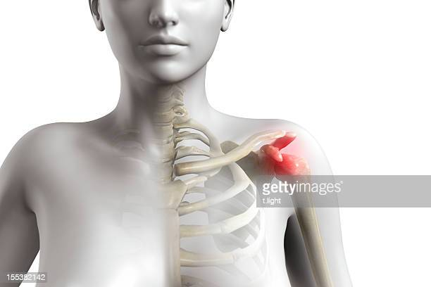 shoulder impingement syndrome - shoulder stock pictures, royalty-free photos & images