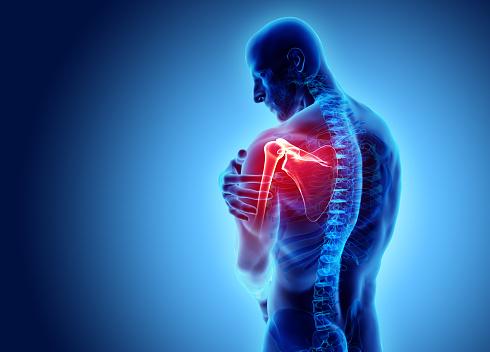 Shoulder painful skeleton x-ray, 3D illustration. 914924826