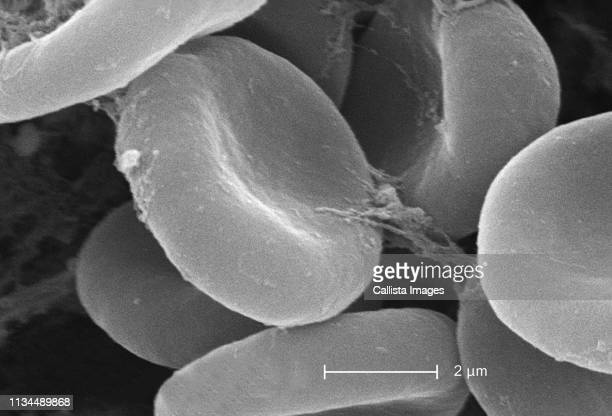 sem showing rbcs and fibrin - blood cells stock pictures, royalty-free photos & images
