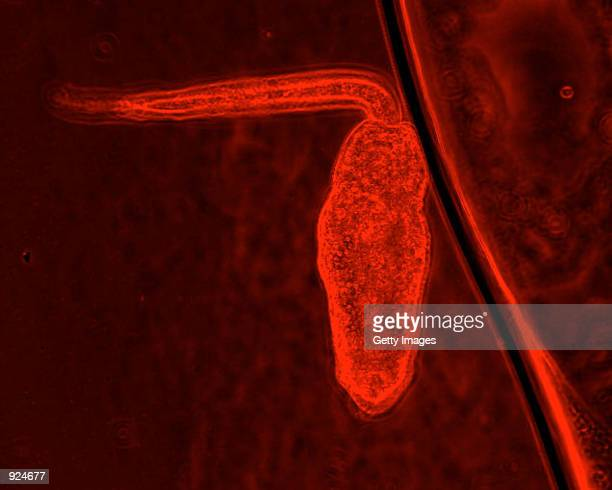 Shown is a close up of a Trematode cercariae the infective stage that attacks amphibians A study by Penn State researchers published in the July 9...