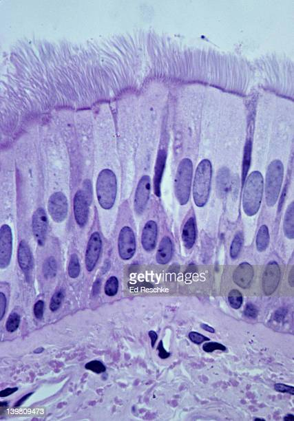 PSEUDOSTRATIFIED CILIATED COLUMNAR EPITHELIUM (TRACHEA, HUMAN, 250x) Shows: cilia, ciliated columnar cells, goblet cells, pseudostratified structure, basement membrane, and supporting connective tissue below.