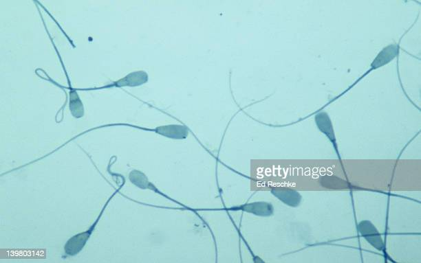 SPERMATOZOA, BULL, 250X.  Shows the head and flagellum (or tail).