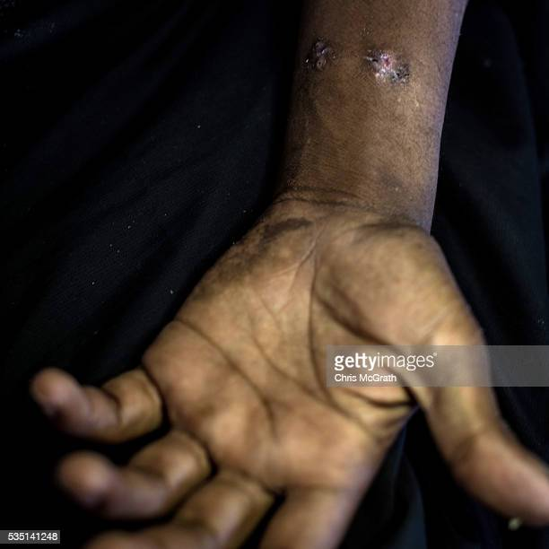 Shrapnel wounds on the wrist of 34 yearold Syrian Abo as he poses for a portrait on May 12 2016 in Kilis Turkey Abo a fighter for the Free Syrian...