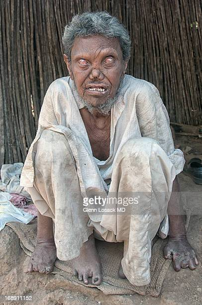 Shrine in KALYAN A man with severe advanced leprosy begging