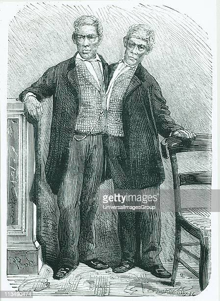Siamese or conjoined twins Chang and Eng born in Thailand it is from these brothers that we derive the popular term Siamese twins Engraving from La...