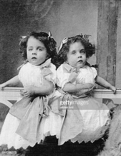Daisy and Violet Die zusammengewachsenen Kinder um 1909