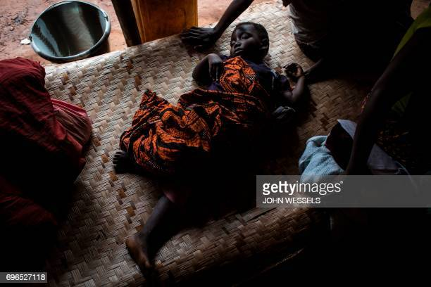 TOPSHOT A sick baby is seen at a makeshift paediatric health centre as an outbreak of malaria hit the village on June 12 2017 in Muma The Malaria...