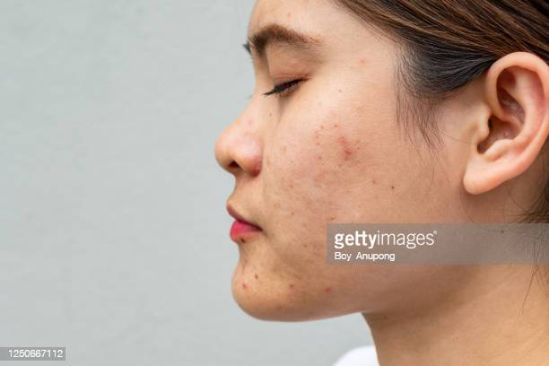 side view close-up of asian woman face has variety problems on her skin (such as acne, pimple, pores and melasma etc). - hautpilz stock-fotos und bilder