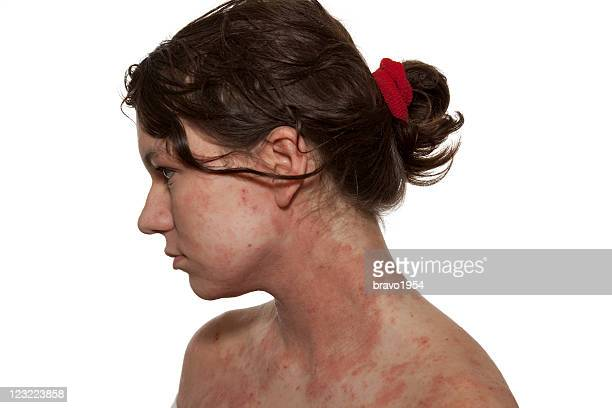 Side view of a woman suffering from red atopic dermatitis