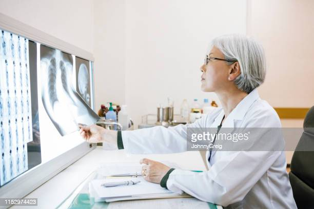 side view of senior female doctor looking at chest x ray - medical x ray stock pictures, royalty-free photos & images