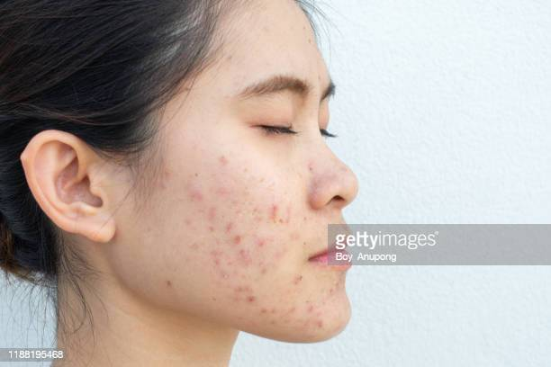 side view of woman half face with problems of acne inflammation (papule and pustule) on her cheek. - fille moche photos et images de collection