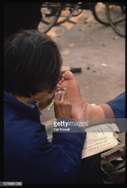 Sidewalk Doctor Cutting Plantar Wart