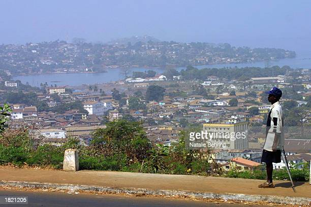 Sierra Leonian amputee walks along a sidewalk February 7 2003 overlooking the city of Freetown Sierra Leone During an eightyear civil war rebels of...