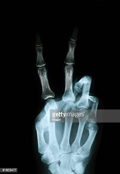 sign of v - middle finger funny stock photos and pictures