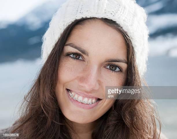 Simply Beautiful, Candid Braces Smile - Winter (XXXL)