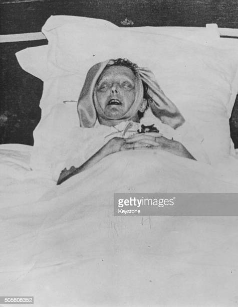 Singer Edith Piaf pictured on her death bed at her flat in Paris October 1963
