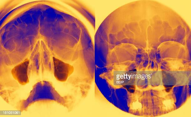 Sinus Of The Face High Face Incidence Left And Incidence Of Blondeau Right Maxillary Sinuses And Normal Frontal Sinuses