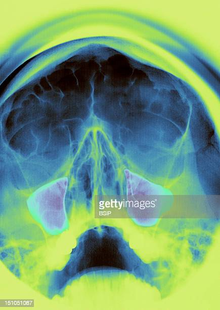 Sinus Of The Face Incidence Of Blondeau Normal Maxillary And Frontal Sinuses
