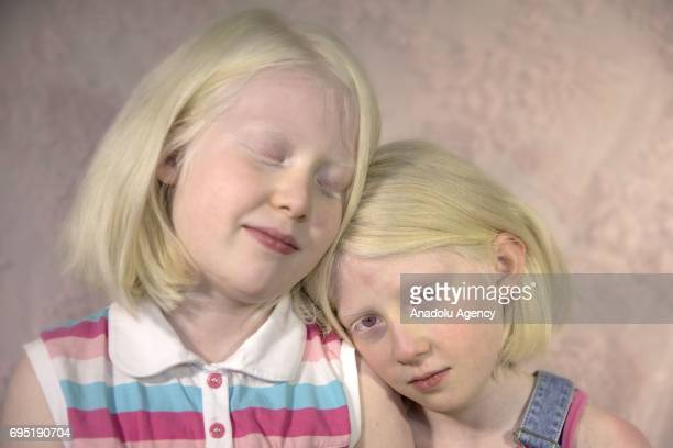 Sisters with albinism Selin and Suheda Kilic pose for a photo in Ankara Turkey on May 24 2017 Albinos a rare group of genetic disorders that results...